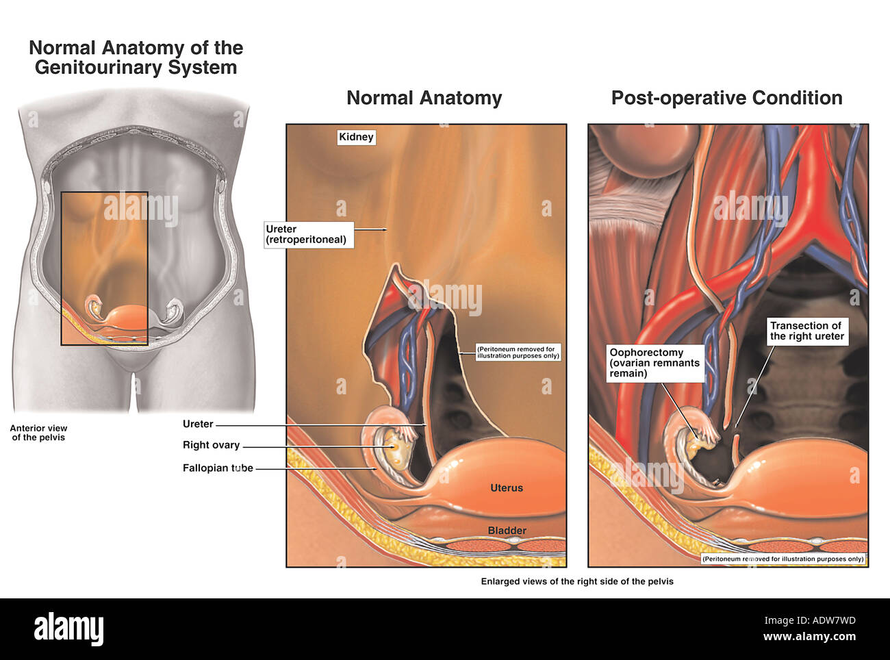 Ovaries Laparoscopic Oophorectomy with Iatrognic Physician related Transection Injury of the Right Ureter Stock Photo