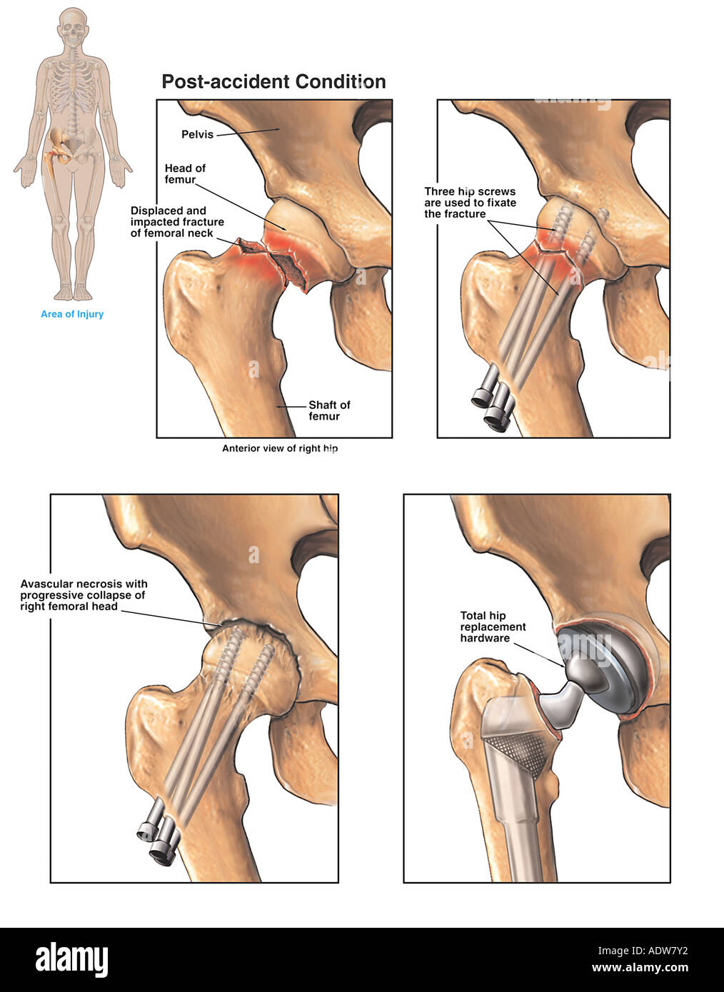 Traumatic Hip Fracture (Broken Hip) with Surgical Fixation and Total Joint Replacement (Arthroplasty). - Stock Image