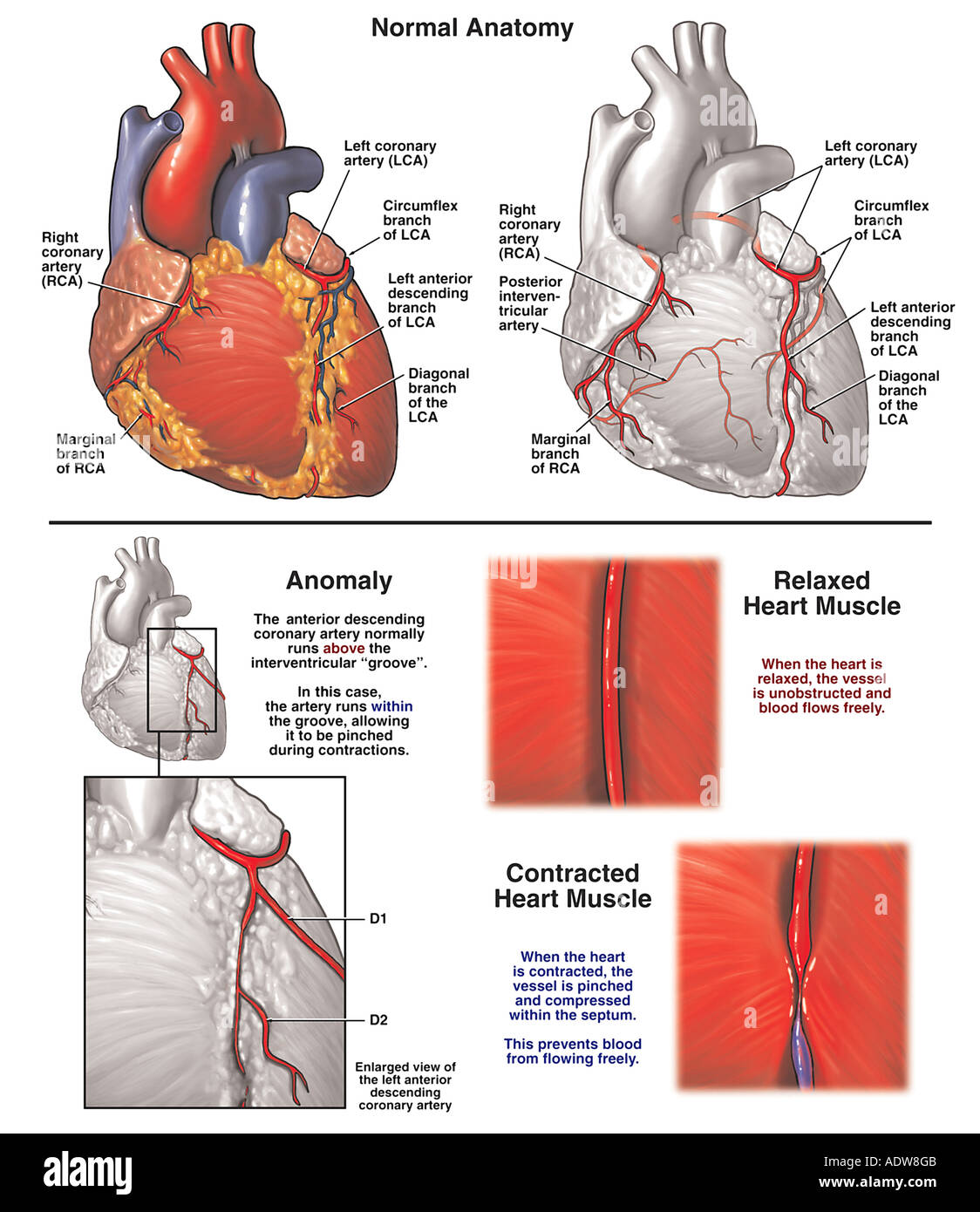 Anatomy of the heart with abnormal anomalous intramuscular coronary artery