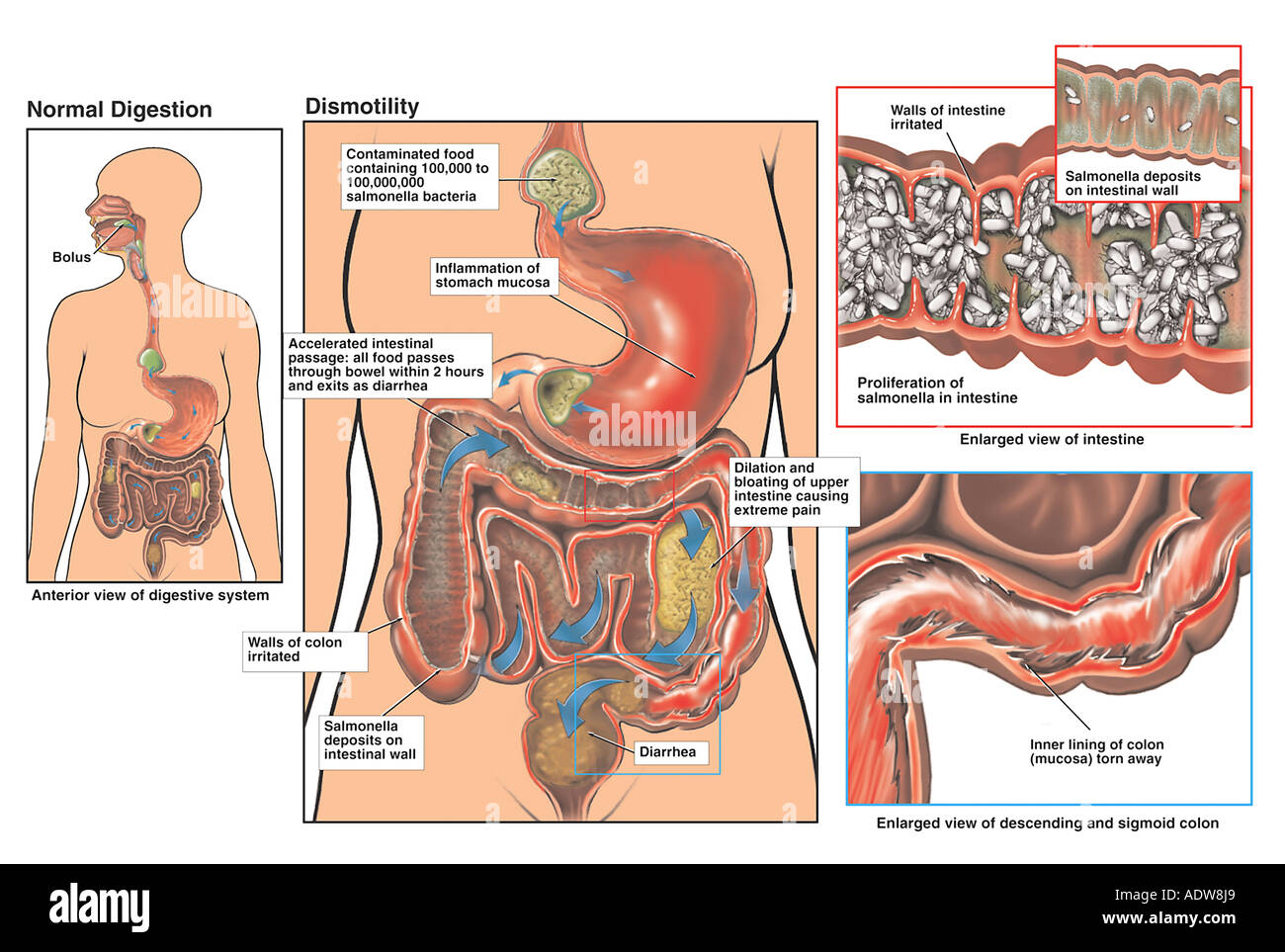 Proliferation of Salmonella with Severe Gastroenteritis - Stock Image