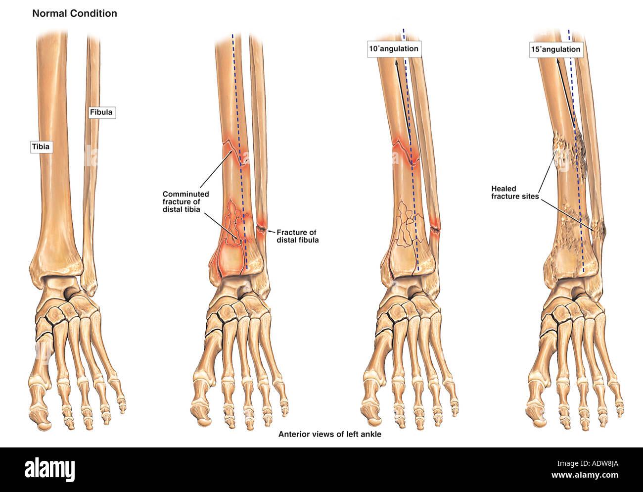 Progression of Leg Fracture - Stock Image