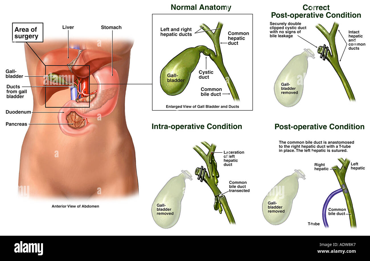 Cholecystectomy Gallbladder Surgery With Injury To The Common Bile