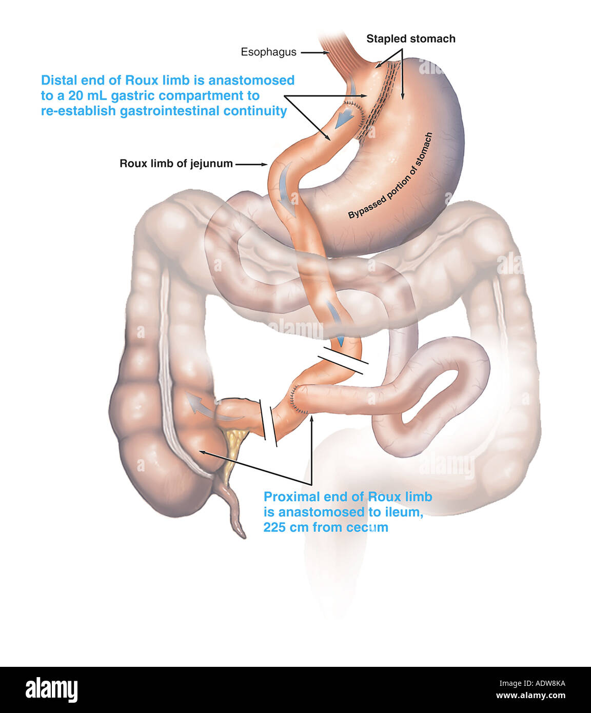 Stomach Roux en Y Gastric Bypass Surgery Stock Photo: 7712569 - Alamy