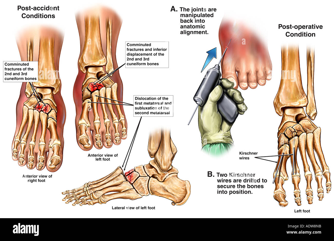 Bilateral Foot Fractures with Surgical Fixation of the Left Foot ...