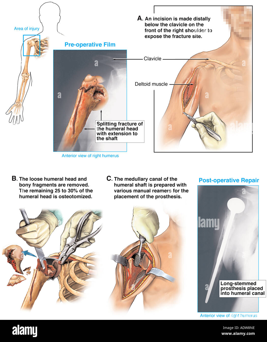 Total Shoulder Joint Replacement Surgery Arthroplasty Stock Photo
