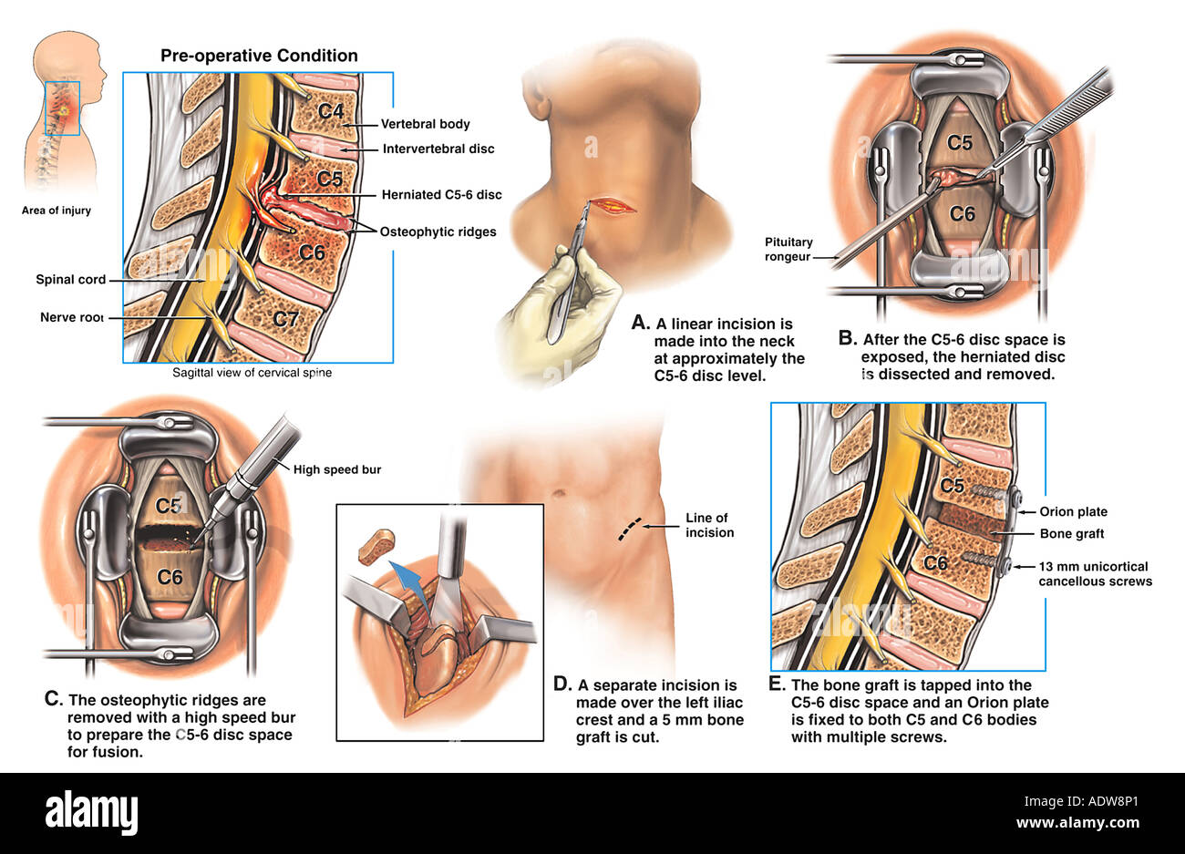 Whiplash Neck Injury C5 6 Cervical Disc Herniation with Discectomy ...