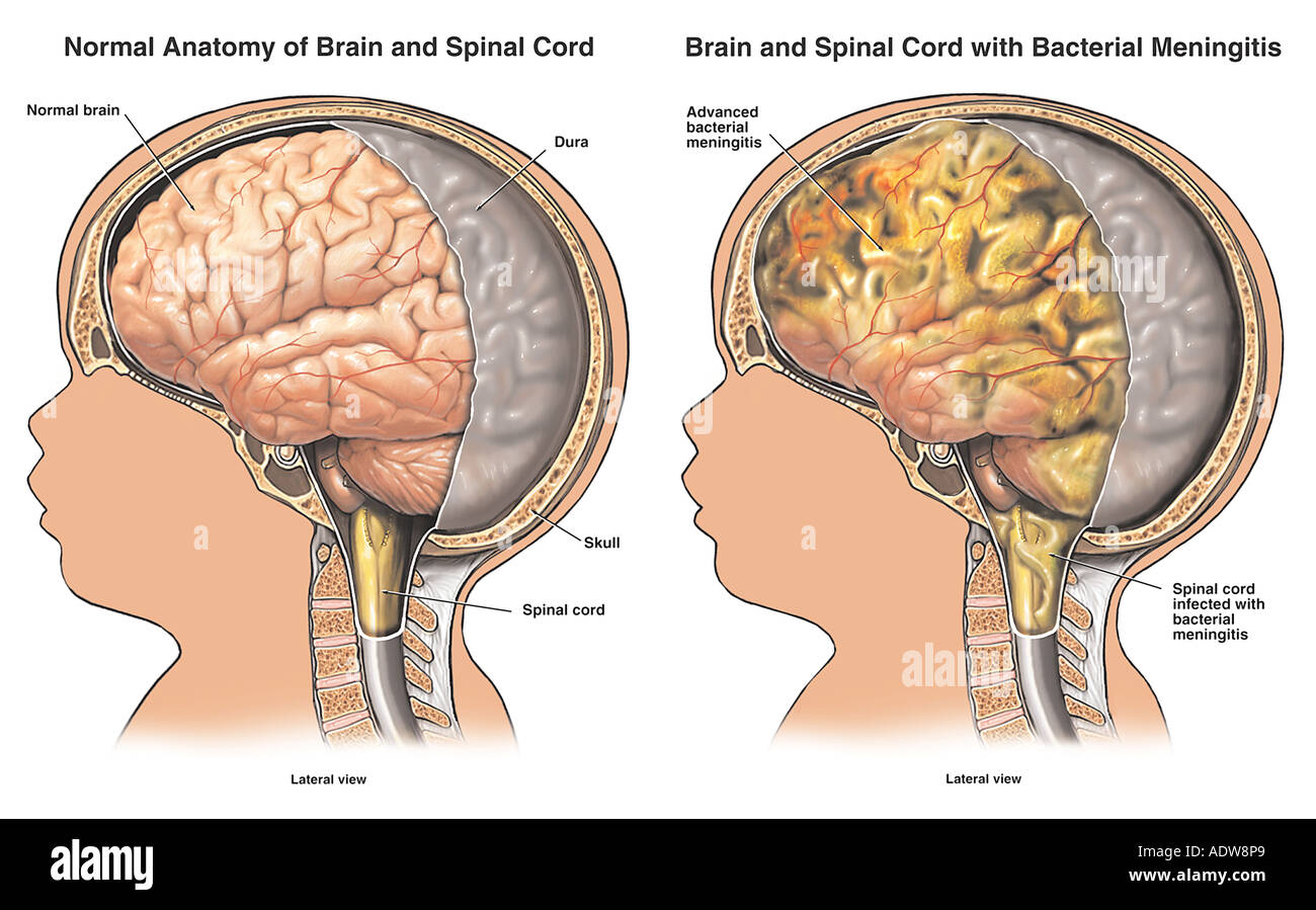 Bacterial meningitis - Stock Image
