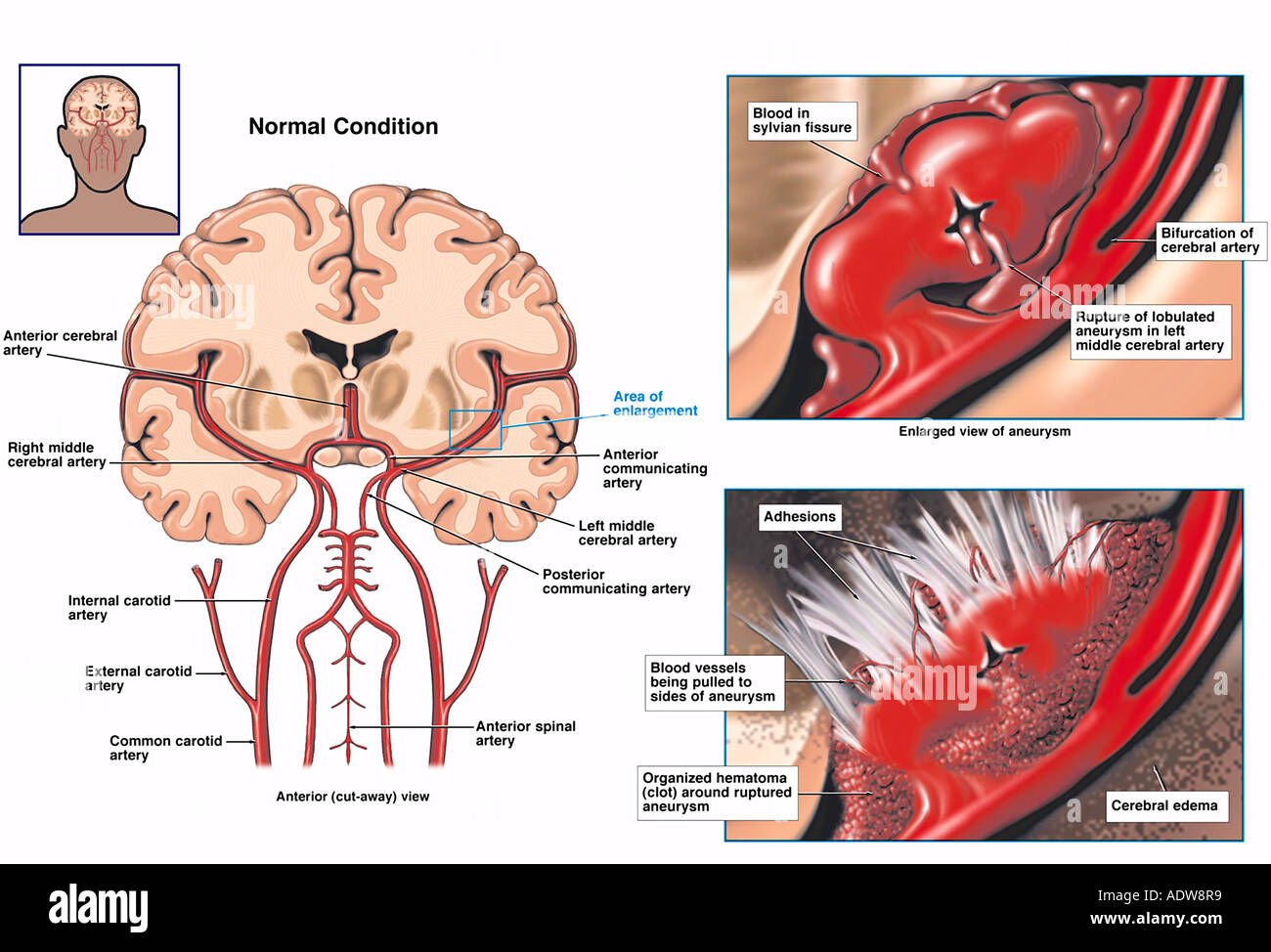 Rupture of Middle Cerebral Artery Aneurysm Stock Photo: 7712632 - Alamy