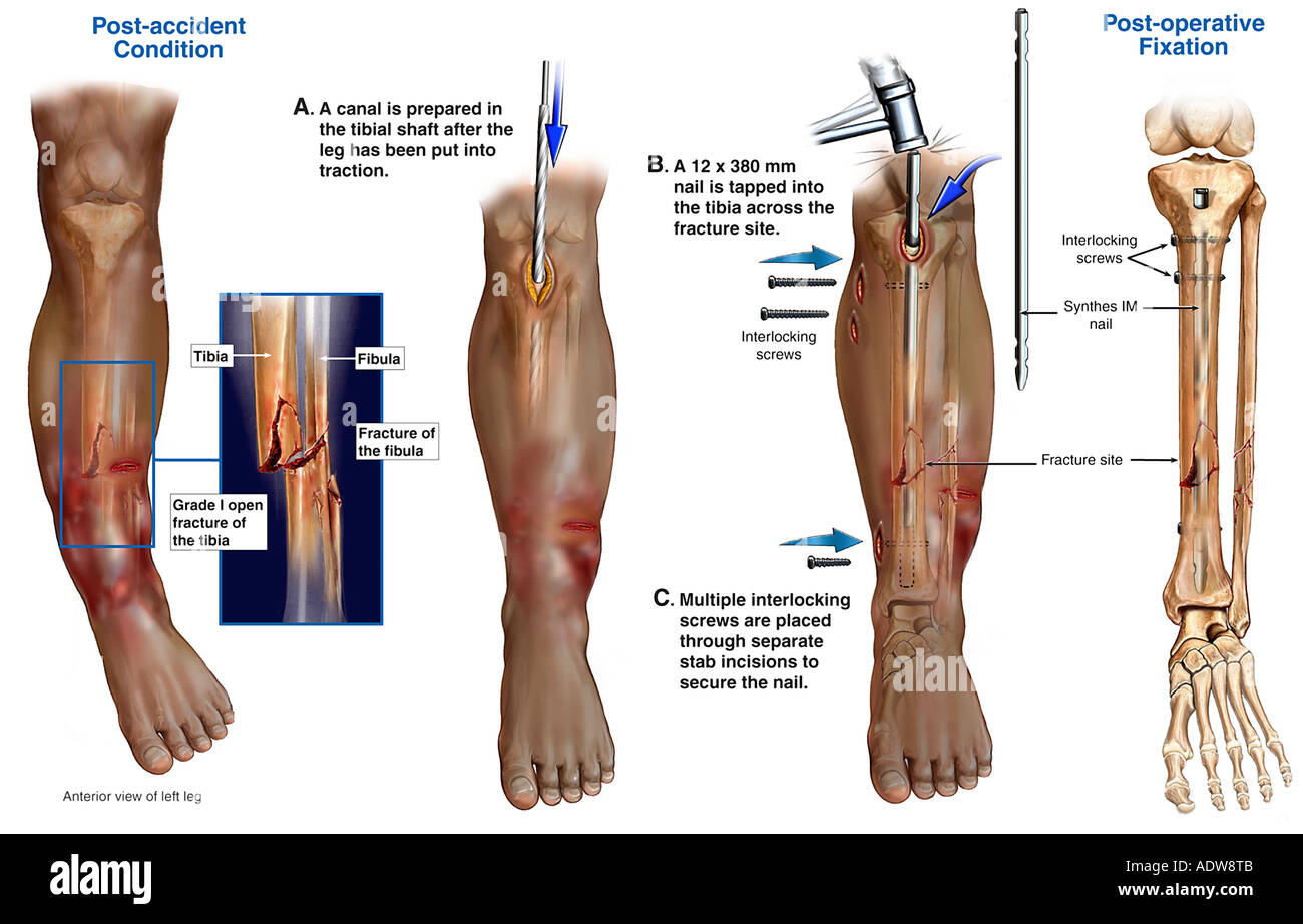 Left Leg Stock Photos & Left Leg Stock Images - Alamy