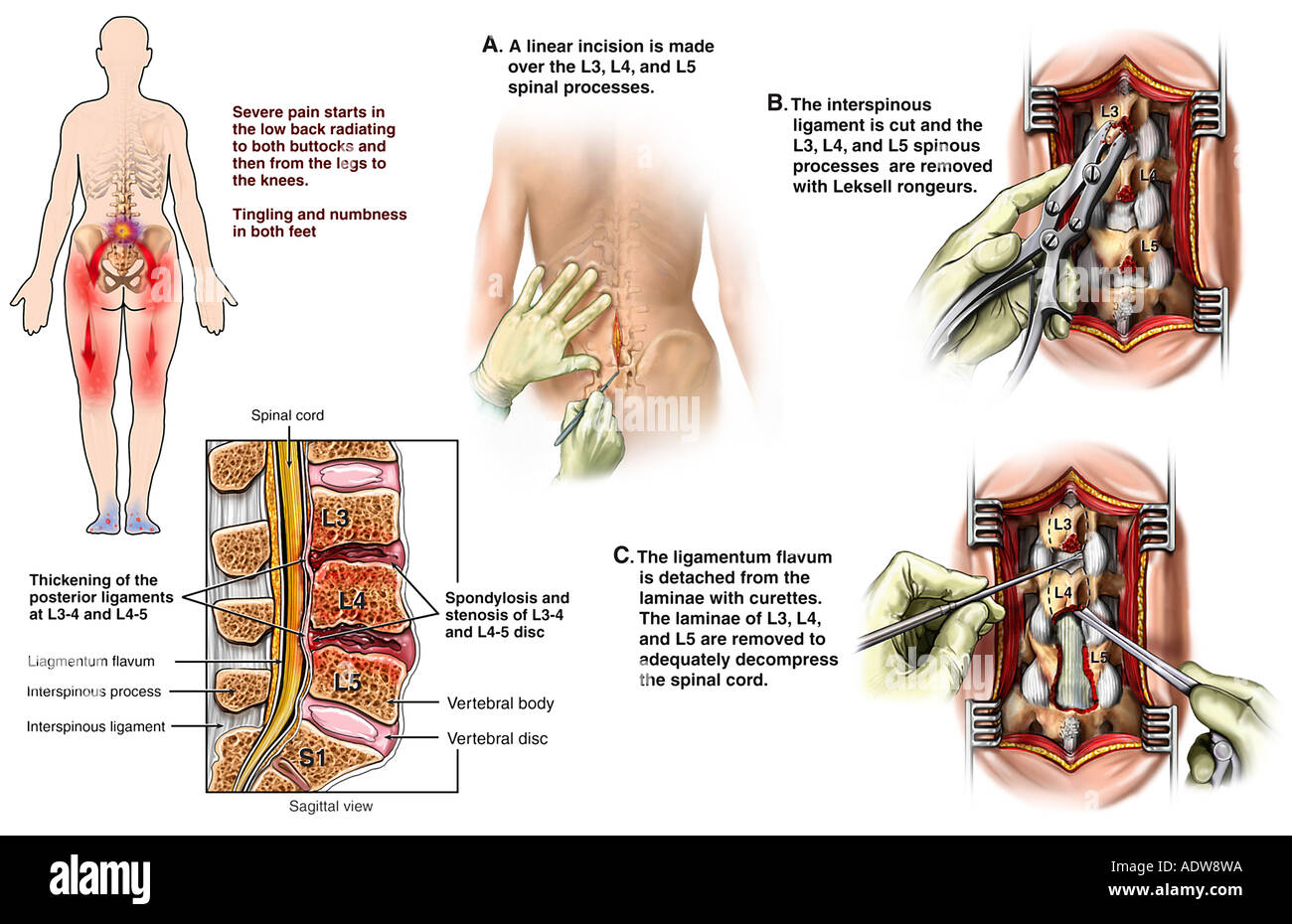 Lumbar Spinal Stenosis with Subsequent Detachment of
