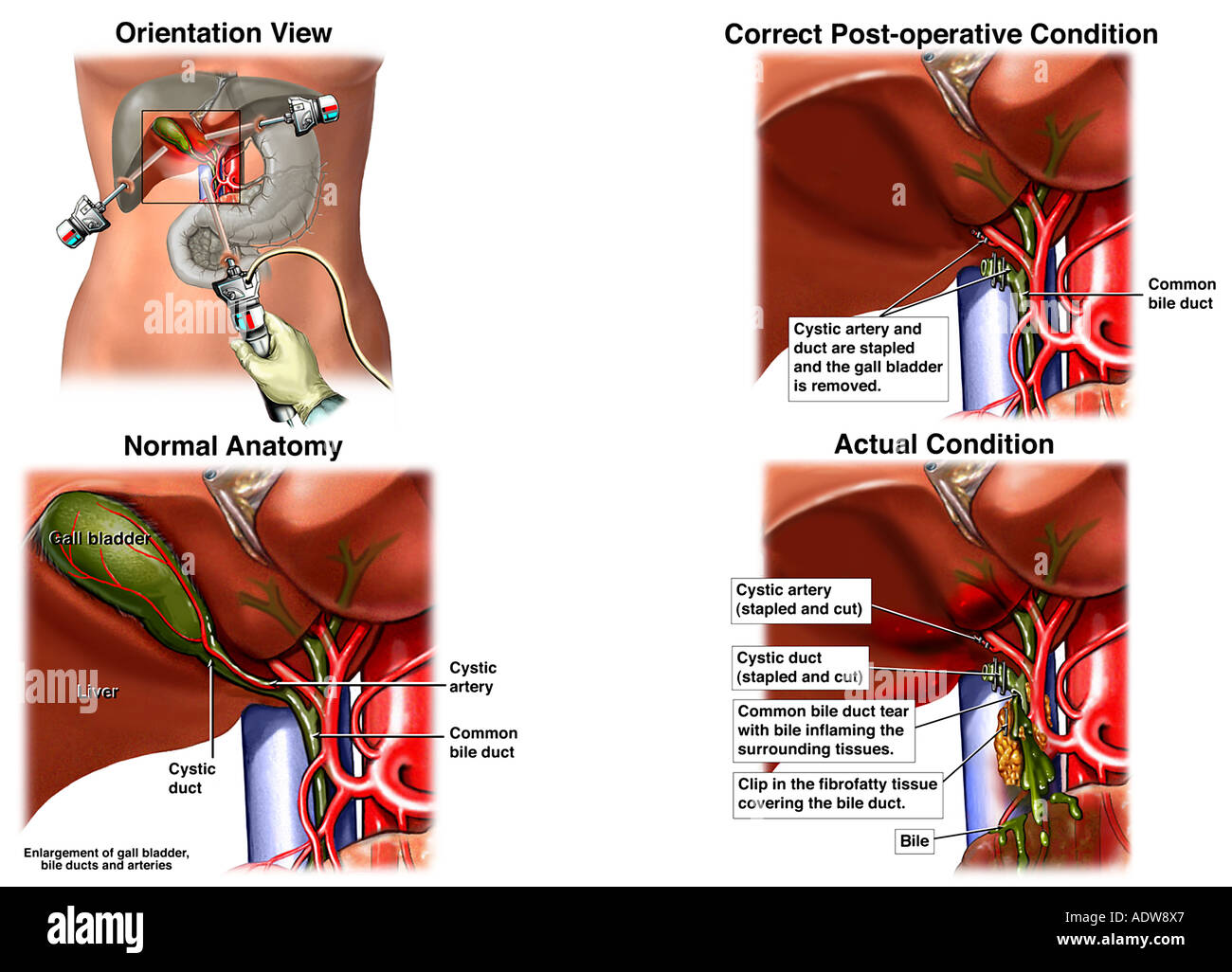 Laparascopic Cholecystectomy Gallbladder Removal Surgery with Accidental Damage to the Common Bile Duct Stock Photo