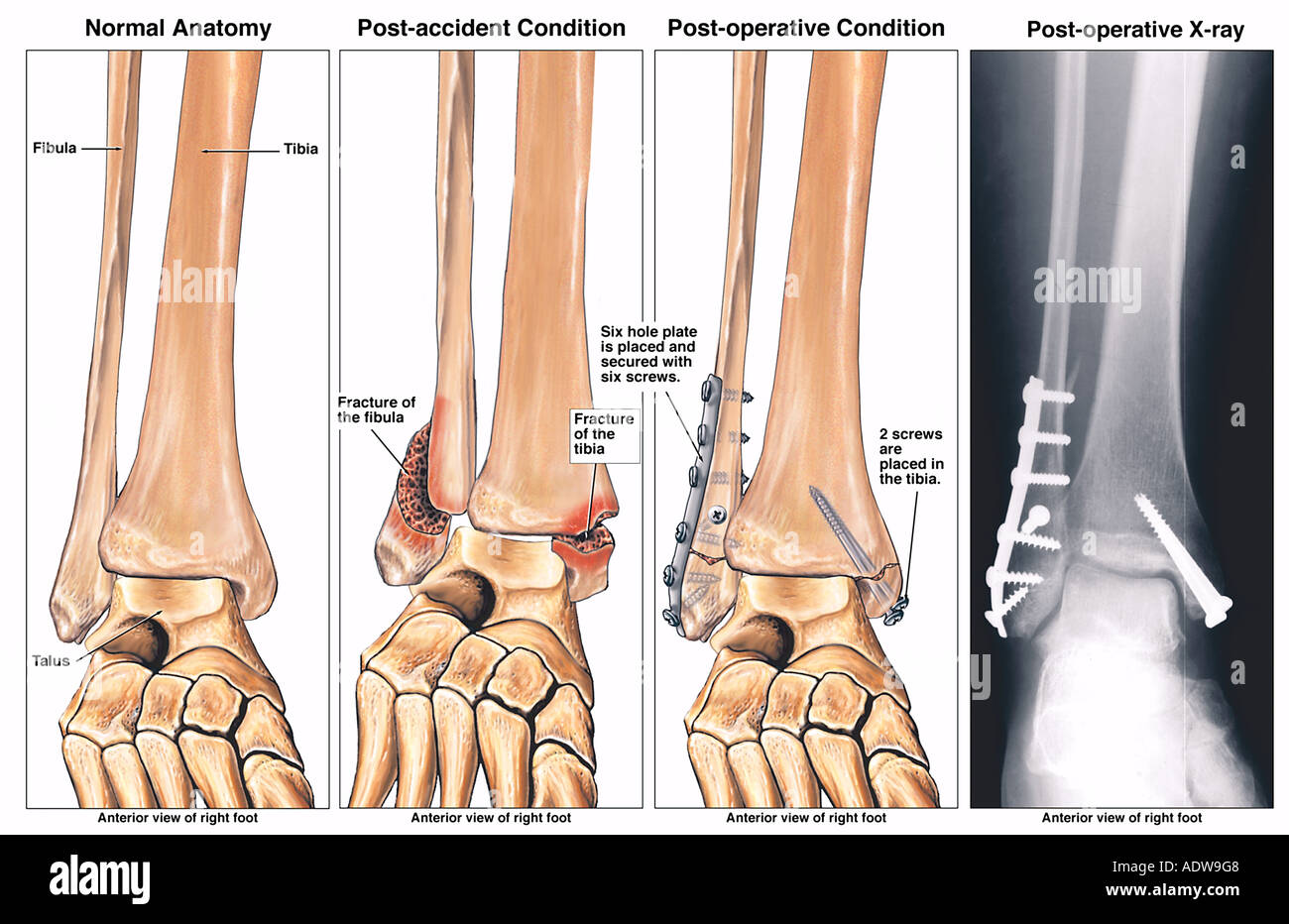 Bimalleolar Fractured Ankle and Subsequent Fixation Surgery with Plates and Screws - Stock Image