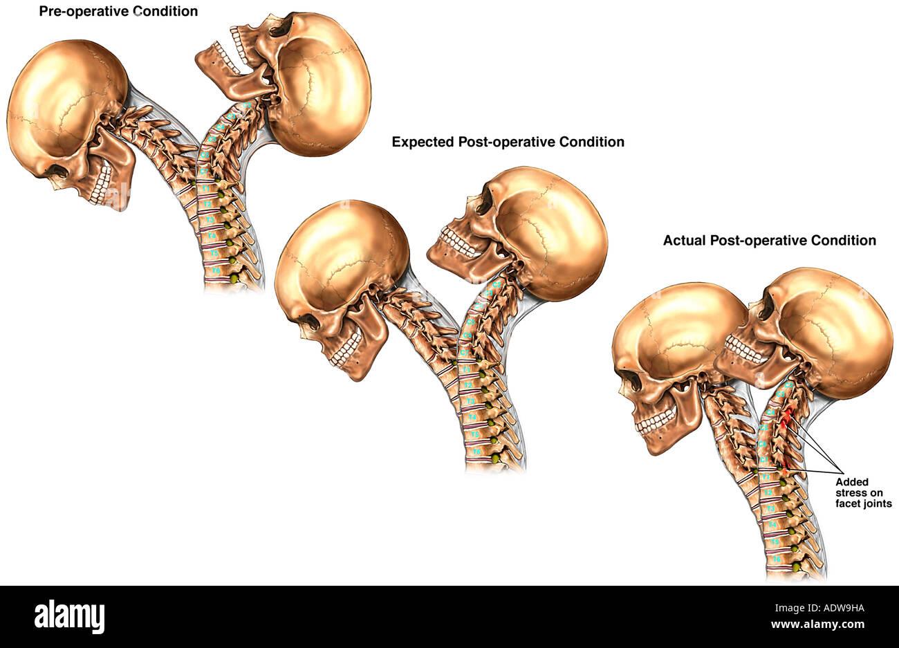 Decreased Post operative Range of Motion in Cervical Spine - Stock Image