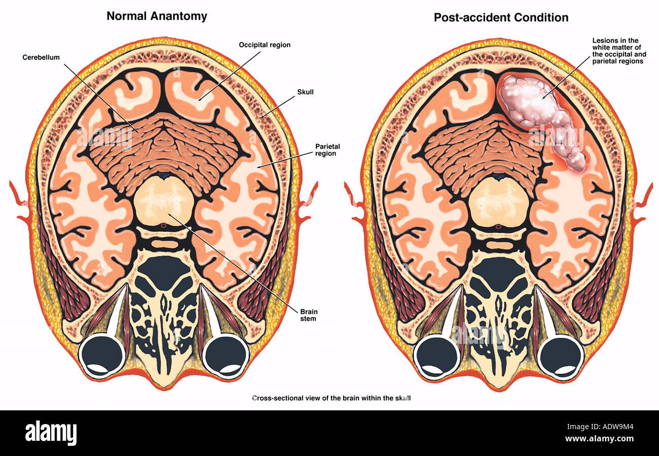post accident brain damage injury with a lesion in the occipital and