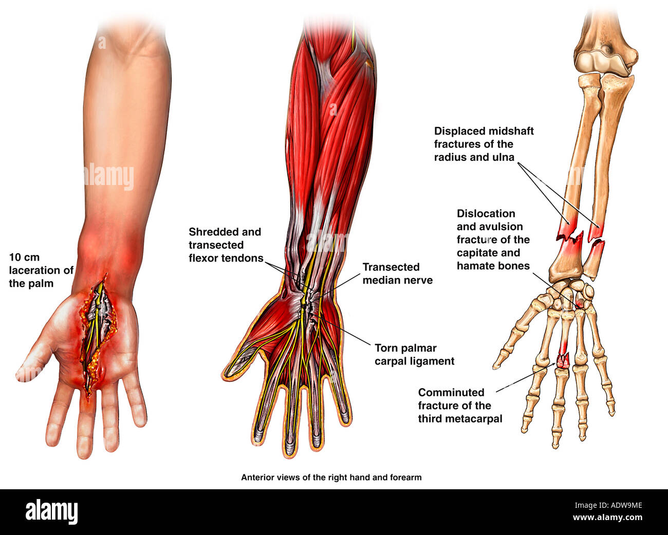Post accident Arm and Hand Injuries - Stock Image