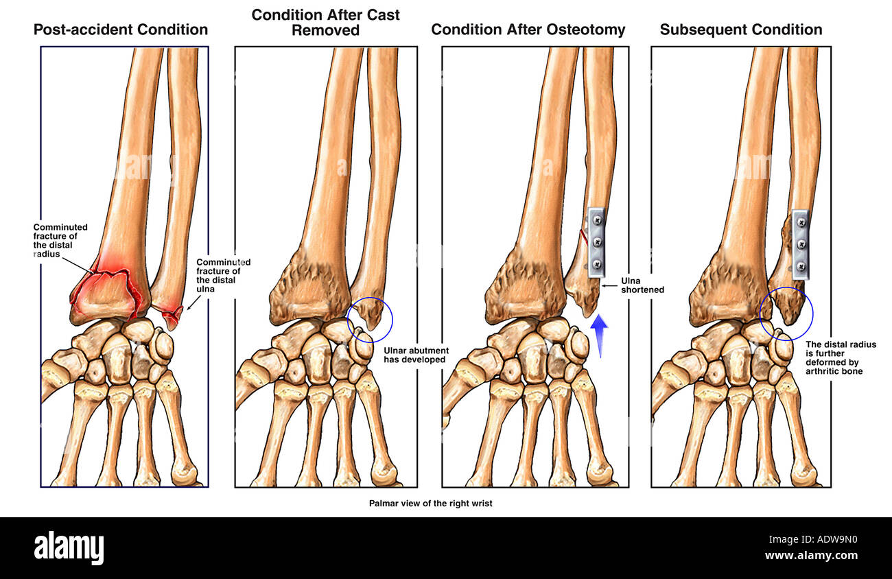 Broken Wrist Fractured Radius and Ulna with Ulnar Shortening Stock ...