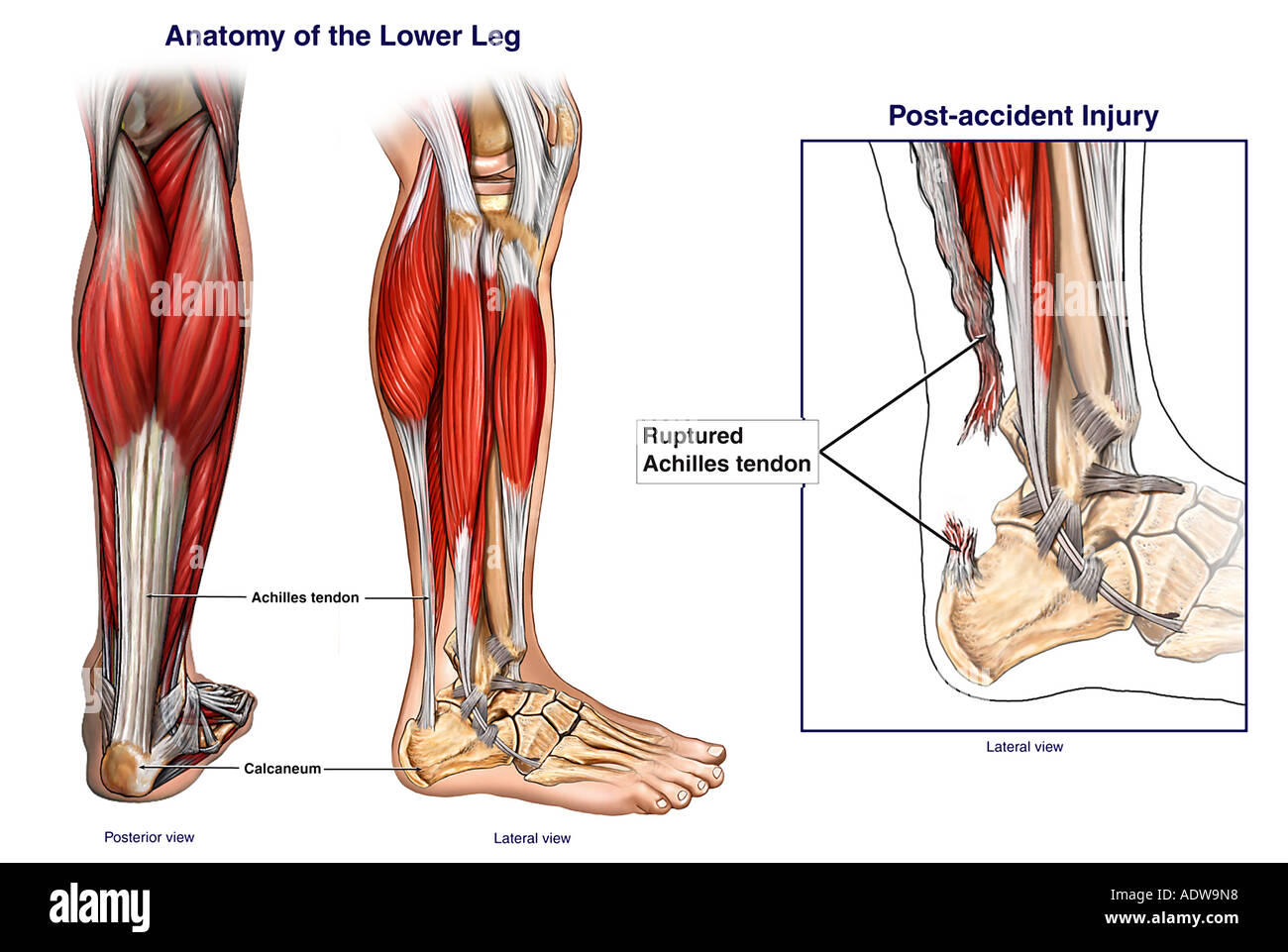 Normal Anatomy of the Lower Leg Stock Photo: 7712791 - Alamy