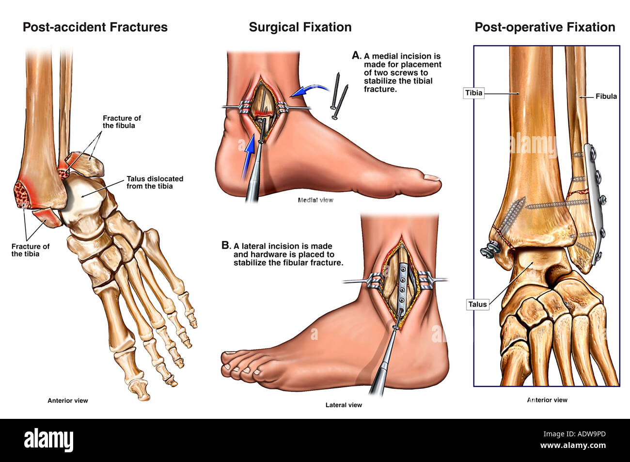 Left Bimalleolar Ankle Fractures with Subsequent Surgical Fixation - Stock Image