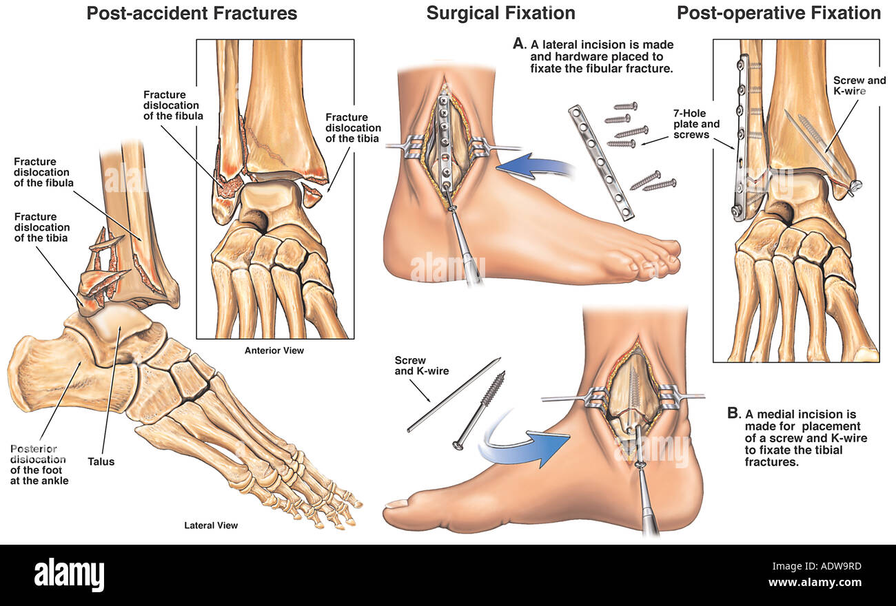 Ankle Surgery Right Tri malleolar Ankle Fractures with Placement of Fixation Plates - Stock Image