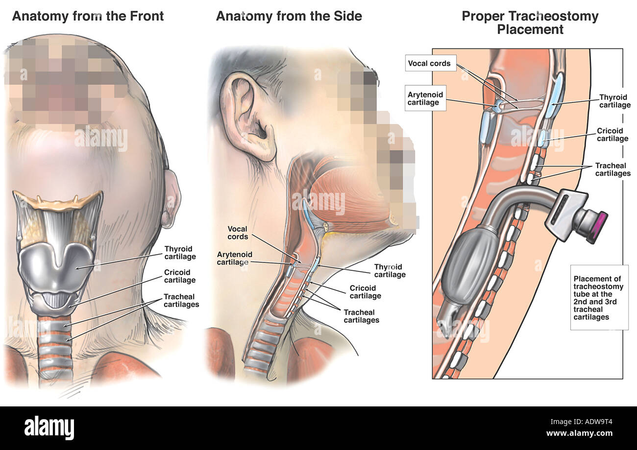 Anatomy of the Trachea with Proper Tracheostomy Placement Stock ...