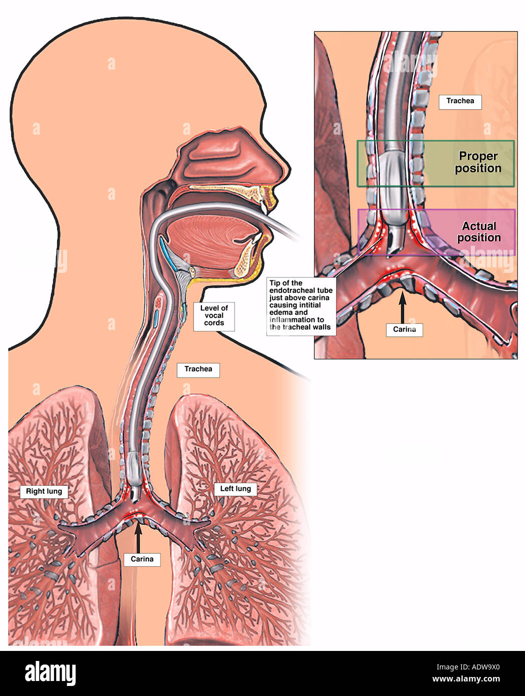 Tracheal Intubation Stock Photos Tracheal Intubation Stock Images