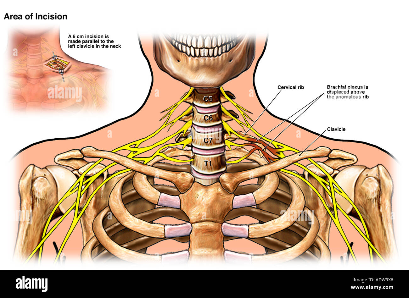 Brachial Plexus Injury Stock Photos & Brachial Plexus Injury Stock ...