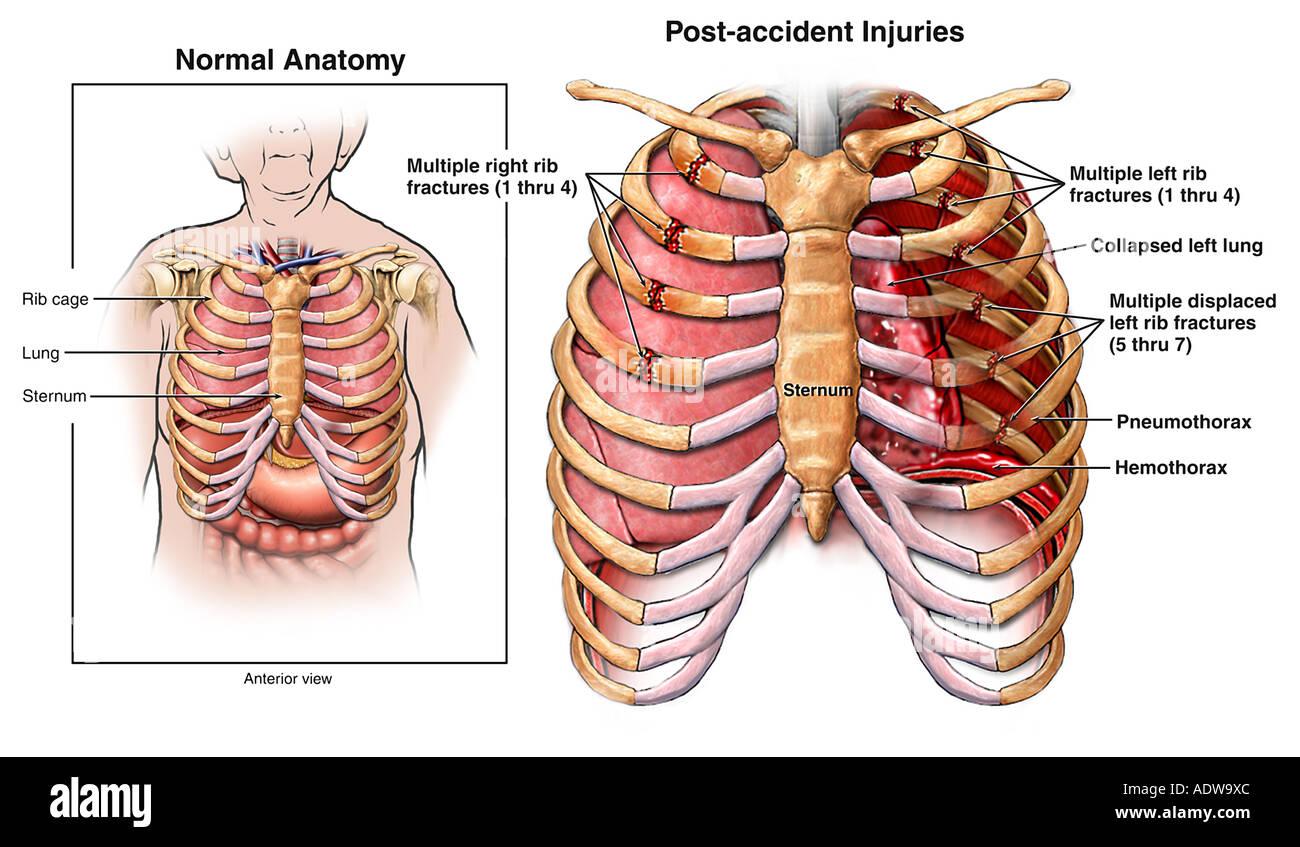 Chest Injury Rib Fractures Hemothorax And Pneumothorax Stock Photo