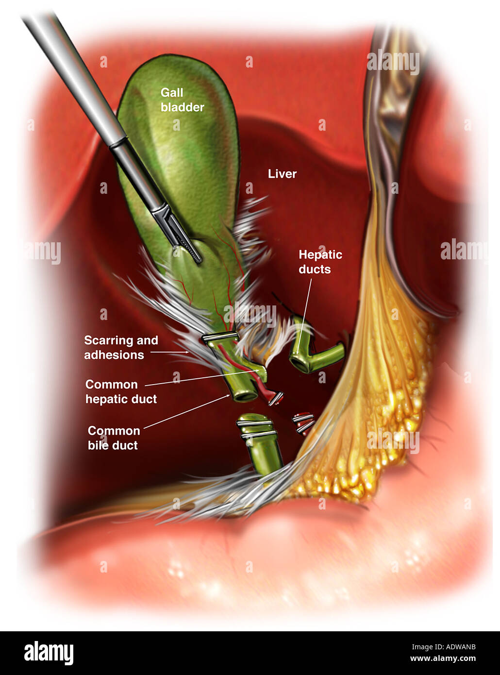 Classic Injury To The Common Bile Duct Stock Photo 7712986 Alamy