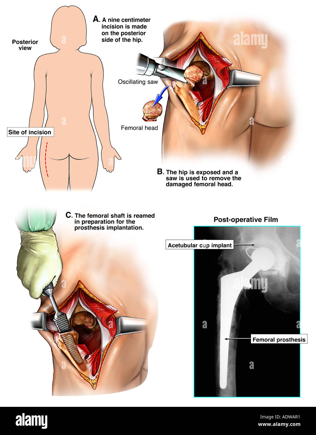 Hip Osteoarthritis with Hip Replacement Surgery Stock Photo: 7713008