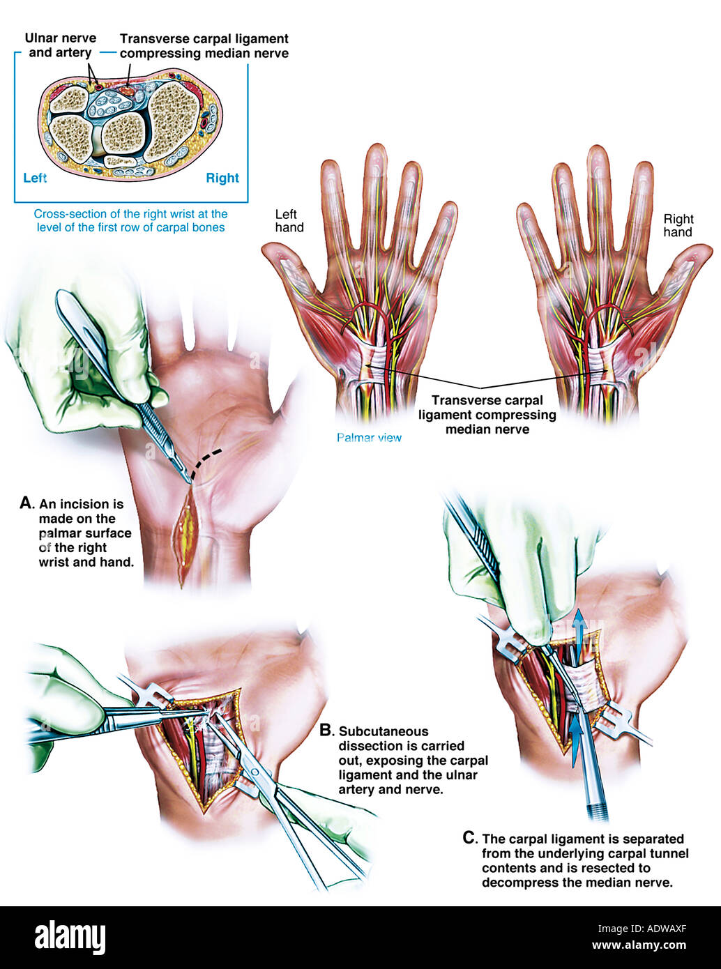 Bilateral Carpal Tunnel Syndrome Surgery Stock Photo 7713070 Alamy