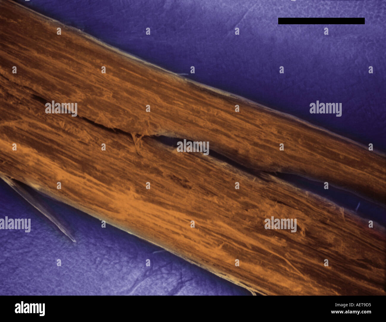 Woman S Hair By Scanning Electron Microscope Showing Split End Black