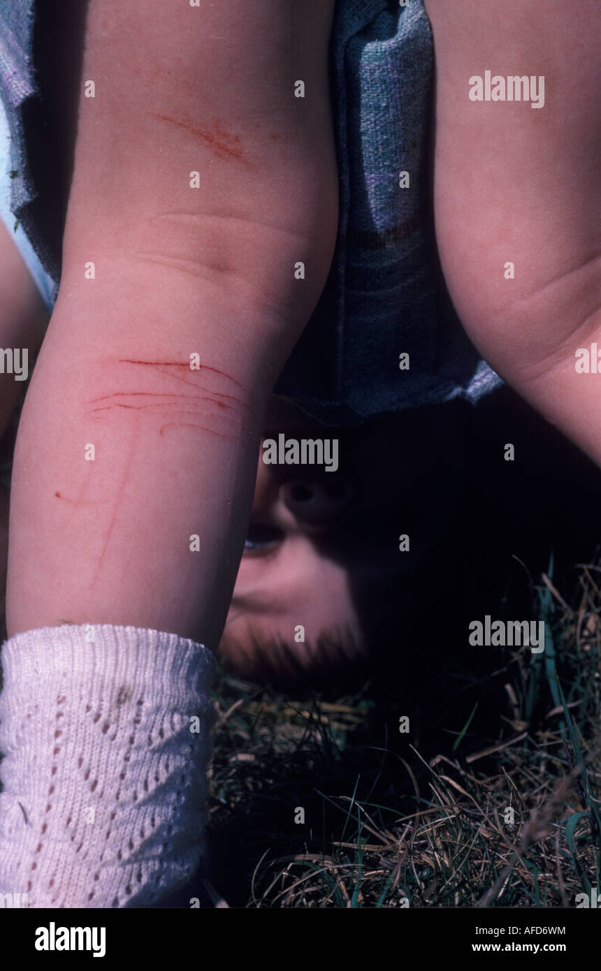 close up of a child s scratched leg - Stock Image