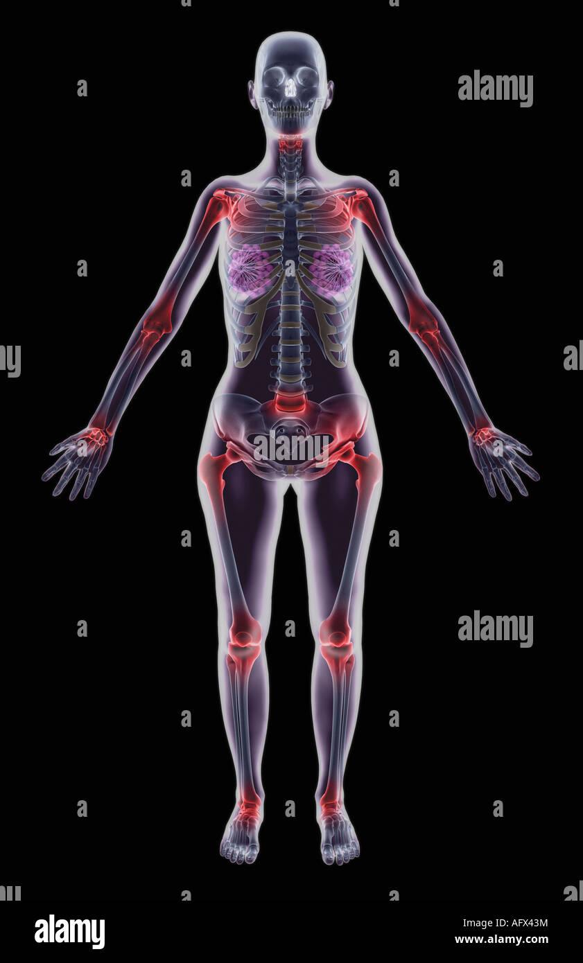 Spondylitis - Stock Image