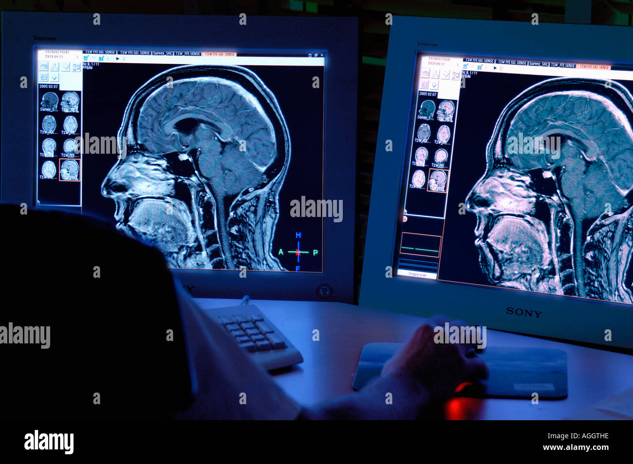 an analysis of human brain In the present work the establishment of optimal storage condition for brain  samples has been one of our aims storage should minimize alterations of the.