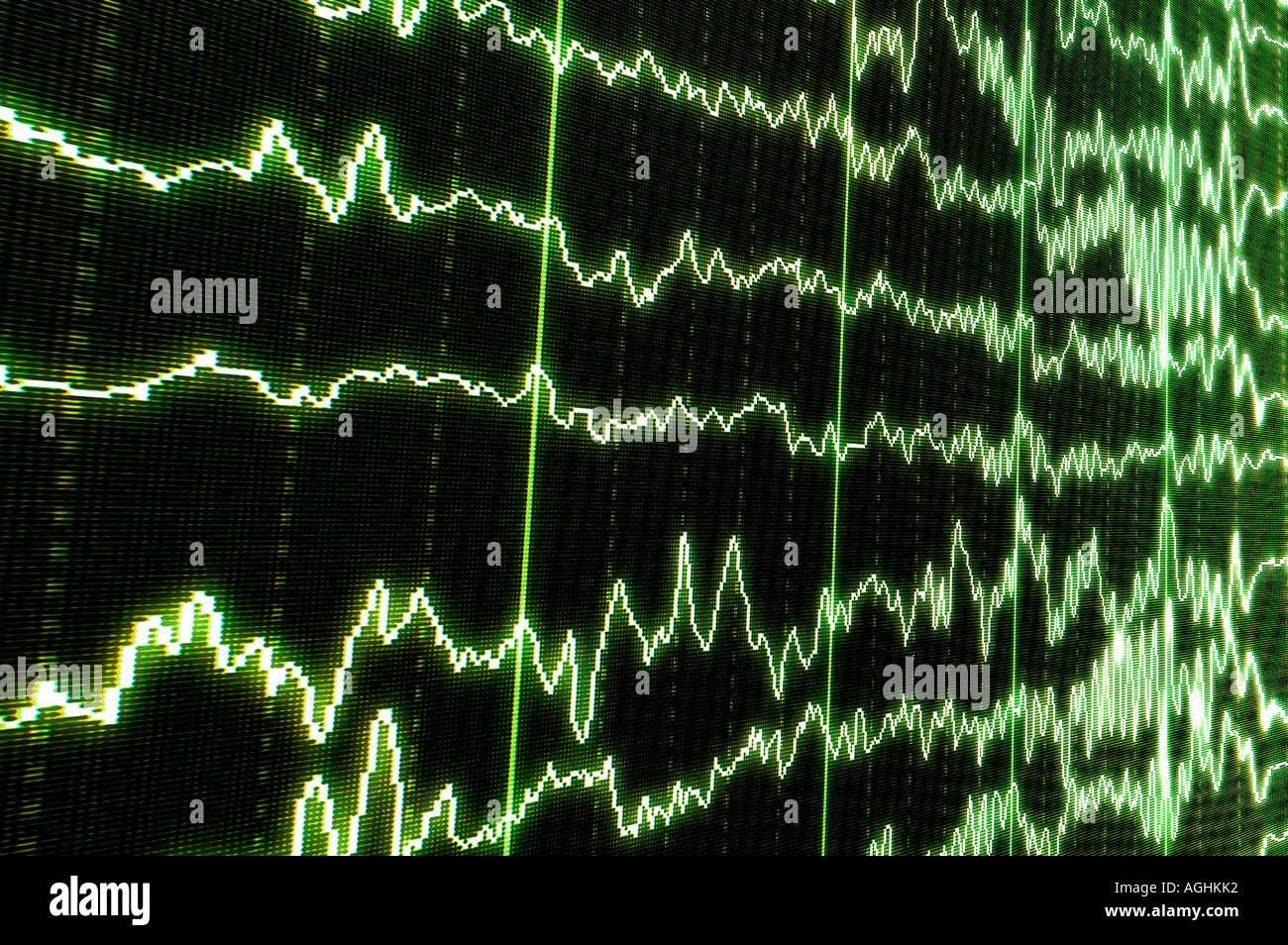 brain waves (alfa, beta, gamma) showing REM-sleep (dreaming) passing on to consciousness (awakening) - Stock Image