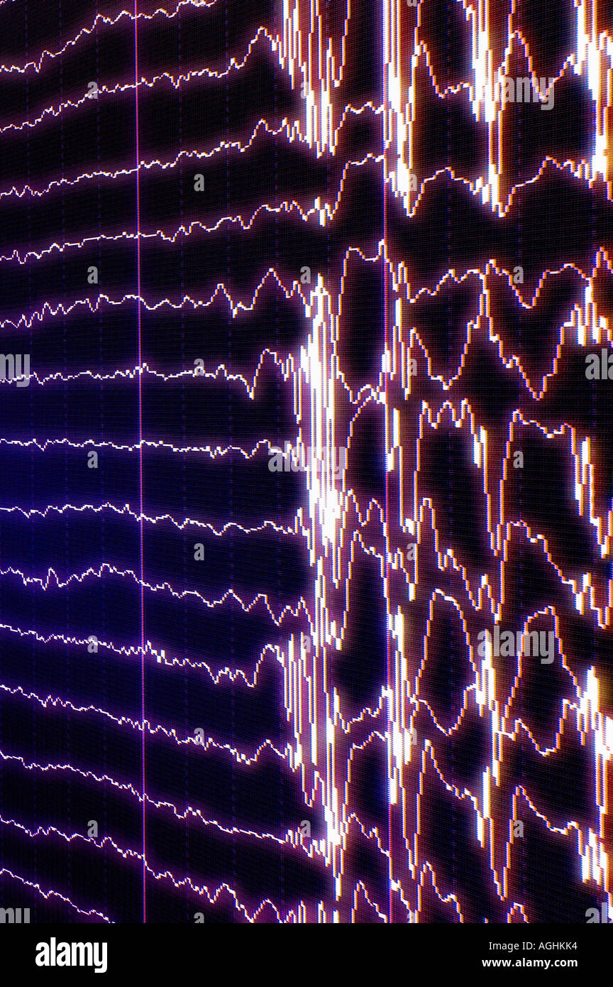 brain waves (alfa, beta, gamma) showing REM-sleep (dreaming) passing on to consciousness (awakening) - Stock Image