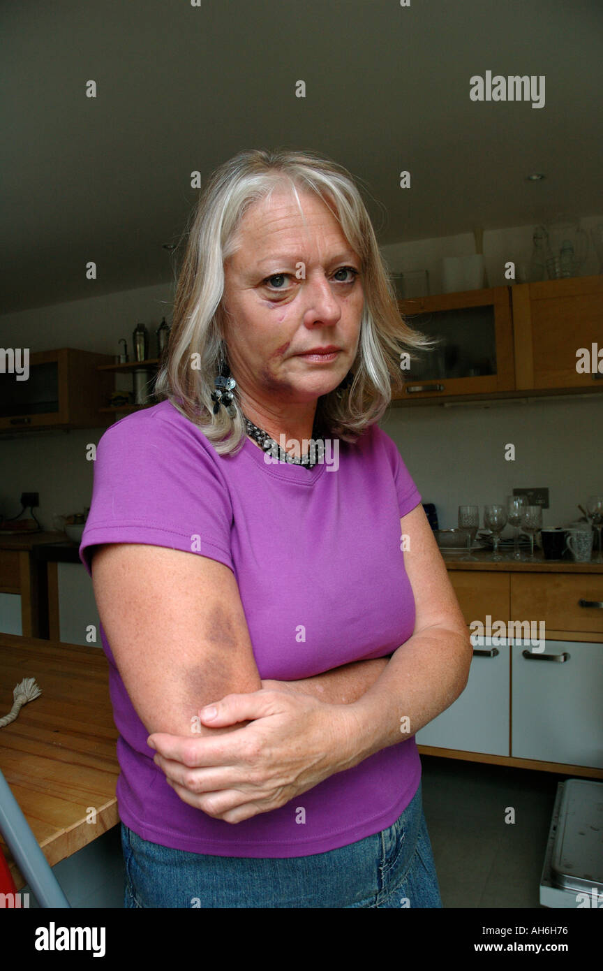 Woman badly bruised and beaten up. - Stock Image