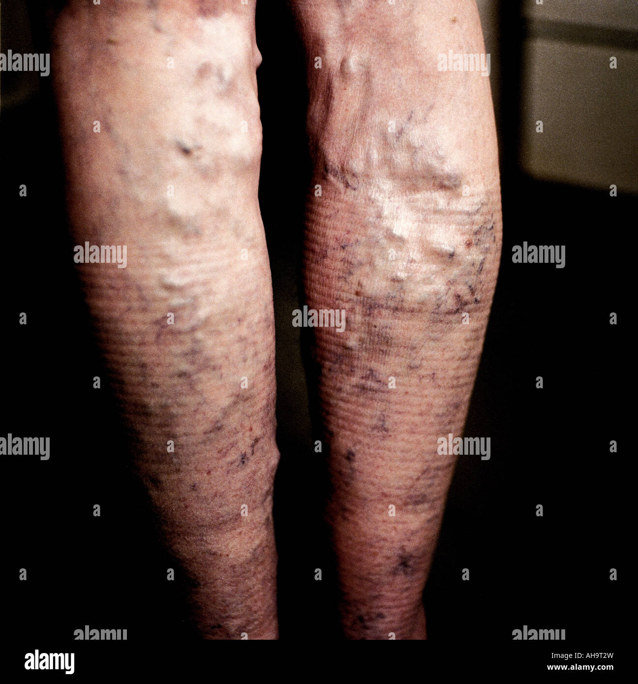 Legs with Varicose veins - Stock Image