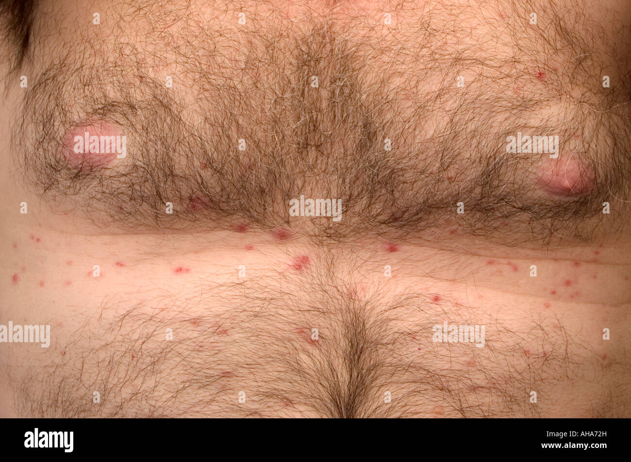 Grover S Disease Middle Aged Man S Chest Stock Photo