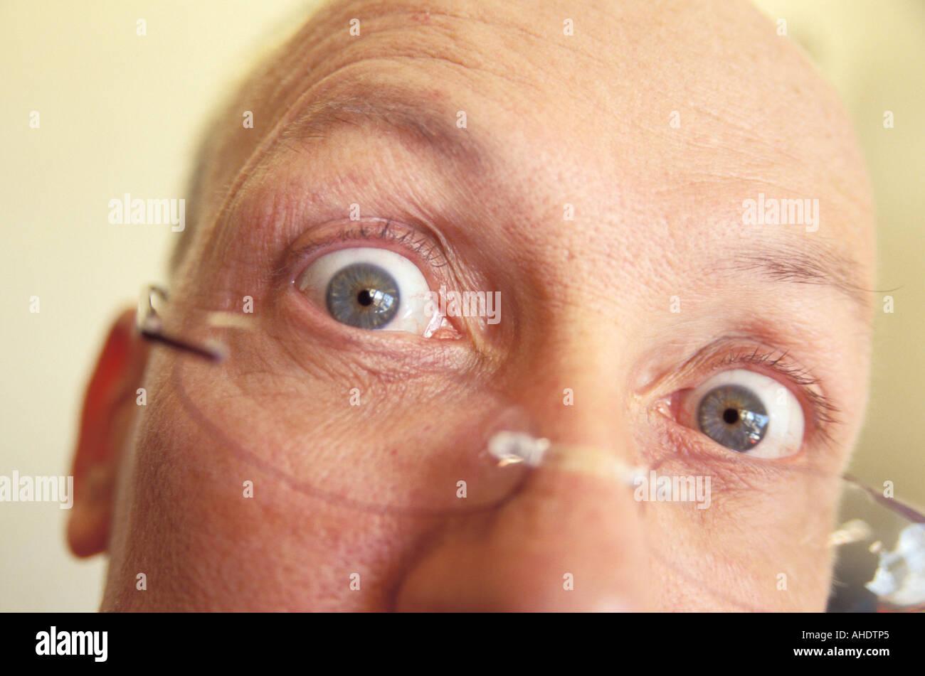 Man s Eyes Wide Open - Stock Image