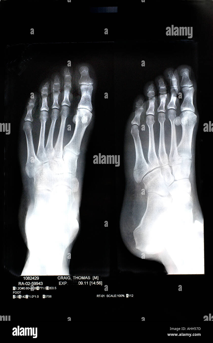 Medical 'X Rays' of BRoken Bones in 'Left Foot' xray 'Black and White' B/W 'still life' - Stock Image