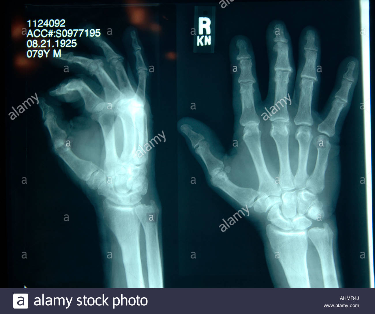X-rays of hand - Stock Image