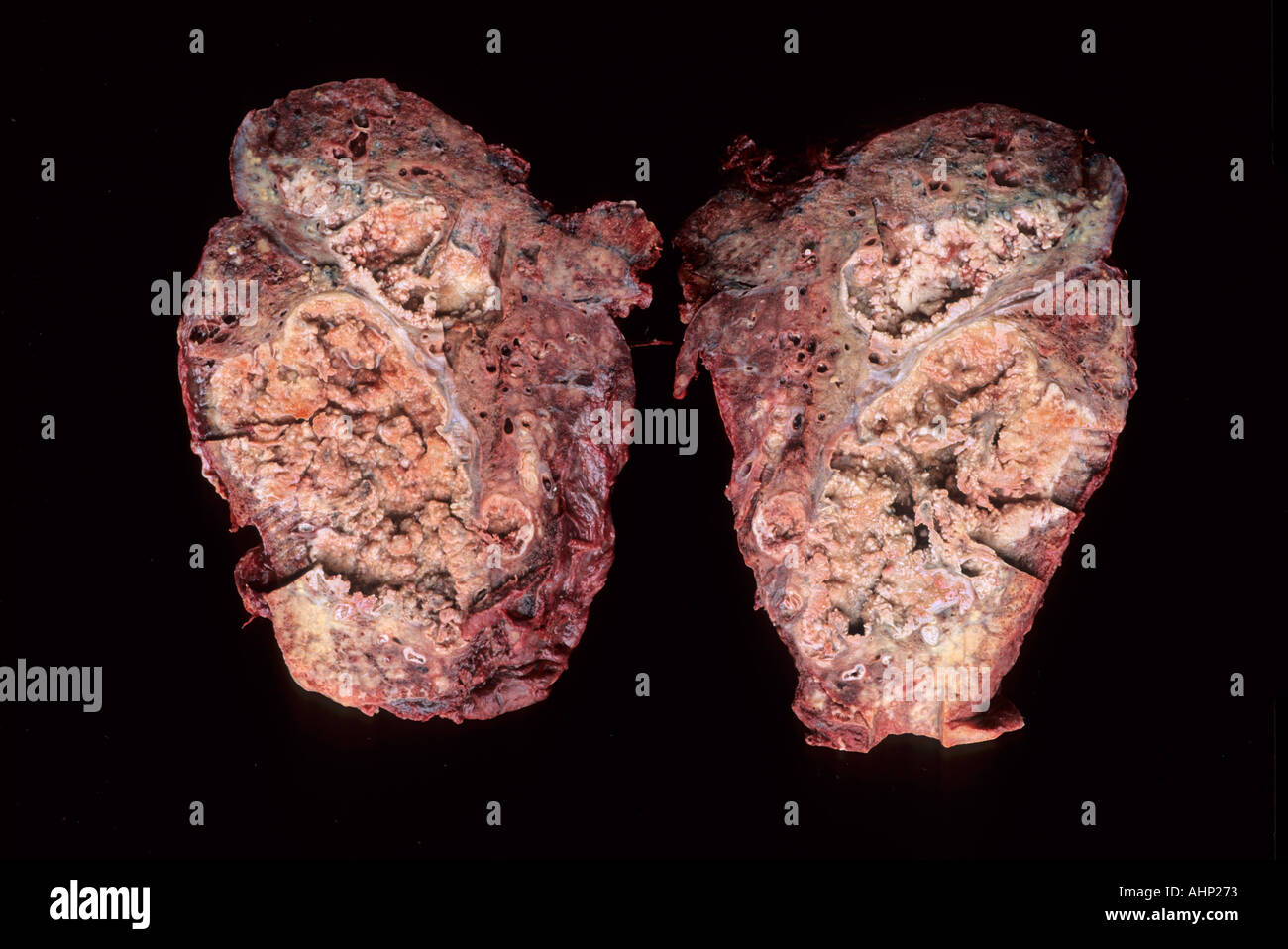 Carcinoma of the lung - Stock Image