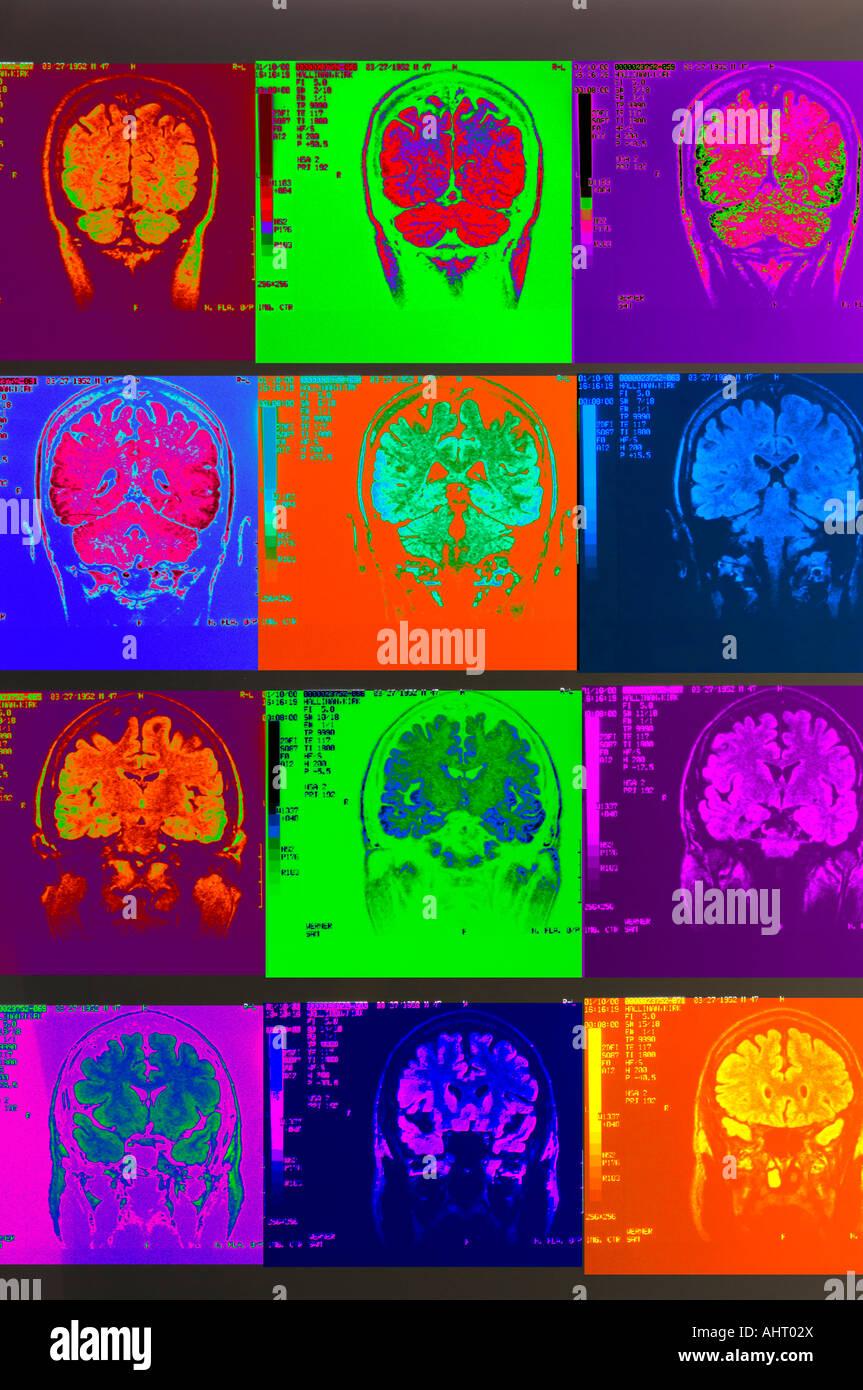 colored x-rays of cerebral cortex cerebellum human brain MRI Stock Photo