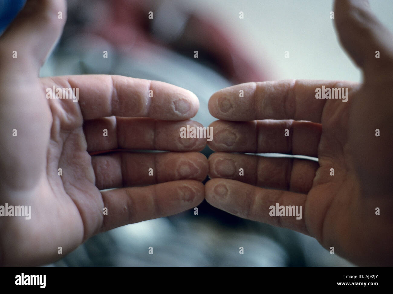 Finger tips raw from rock climbing Stock Photo