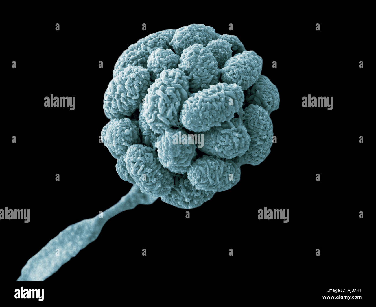 A scanning electron micrograph (SEM) of Stachybotrys chartarum Stock Photo