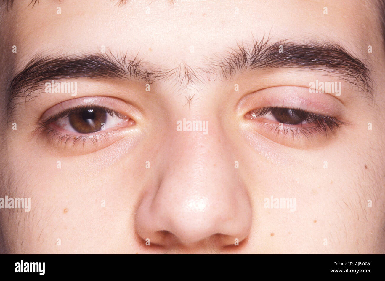A person with ptosis is not able to lift one or both upper eyelids to uncover the eye completely - Stock Image