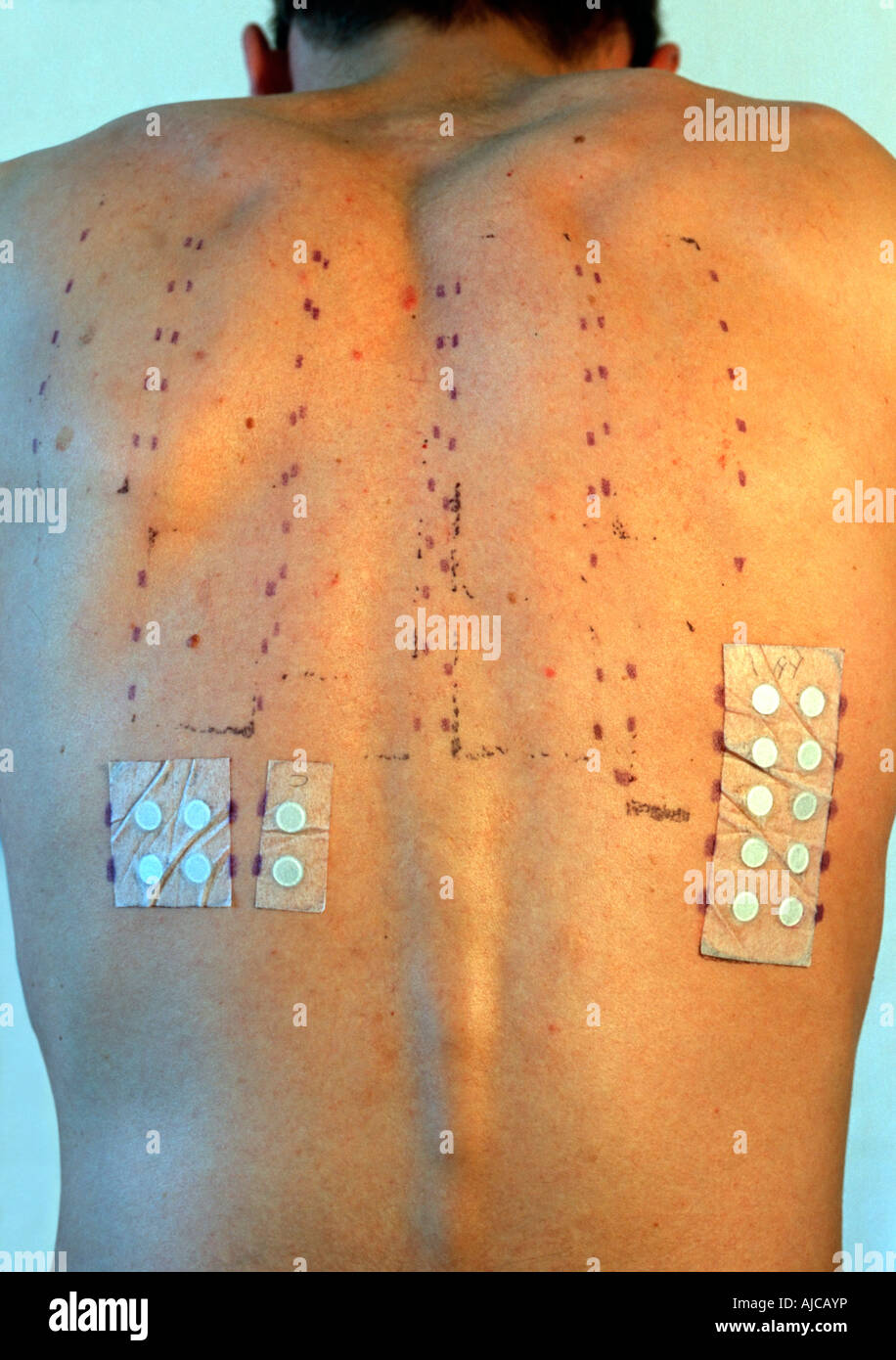 30 Year Old Man Showing His Back Marked From Allergy Test