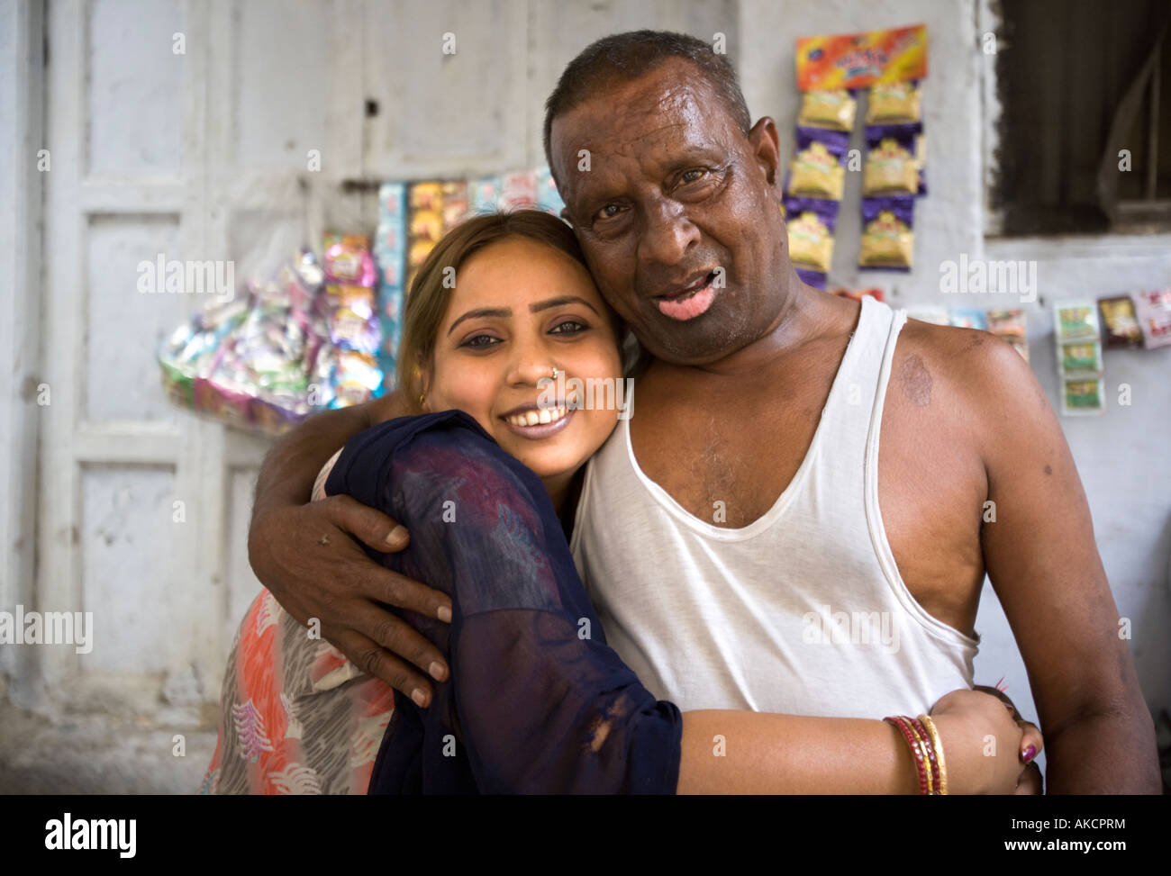 An Indian man with a facial difigurement - Stock Image