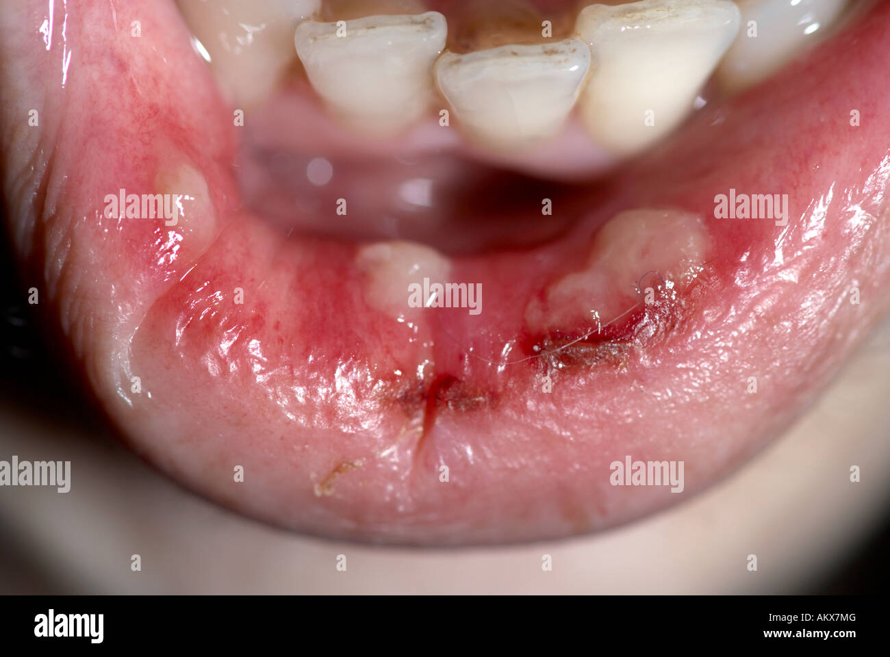 Mouth Ulcers Stock Photos & Mouth Ulcers Stock Images - Alamy